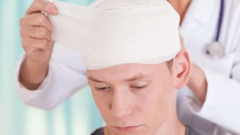 head 470x264 - Uno de cada 14 niños sufre una lesión en la cabeza, informan los CDC