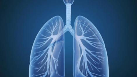 lung 470x264 - La tasa de cáncer de pulmón es ahora más elevada en las mujeres jóvenes que en los hombres jóvenes