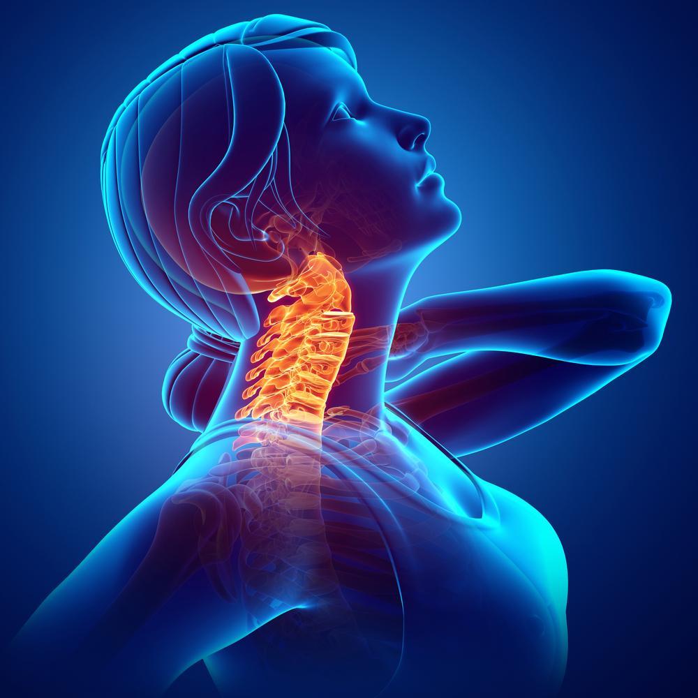 ICARE NECK - Tenga un buen quiropráctico para sus dolores de cuello causados por el celular